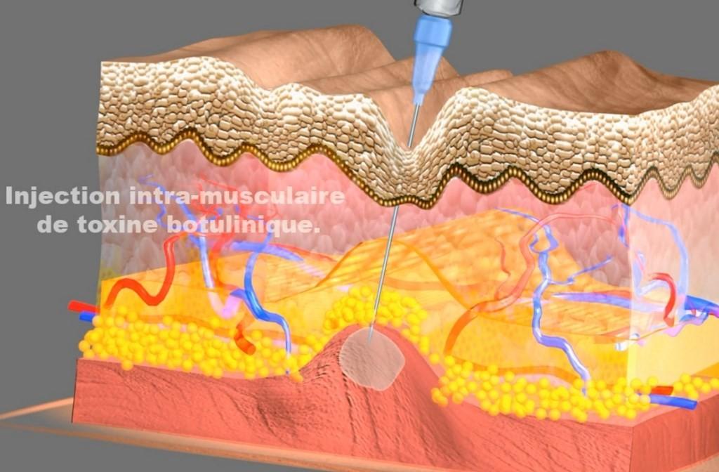 toxine botulique transpiration